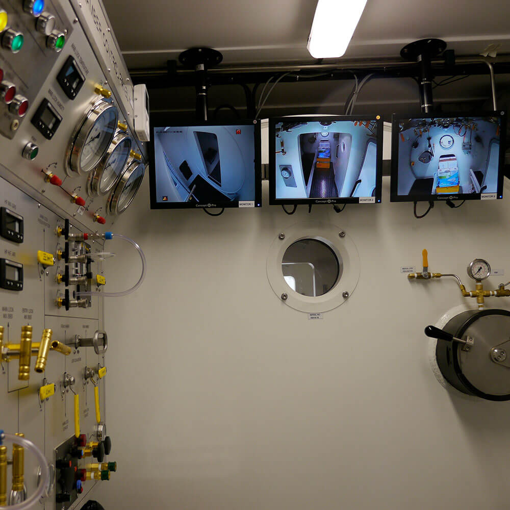 Video screens inside guernsey hyperbaric chamber